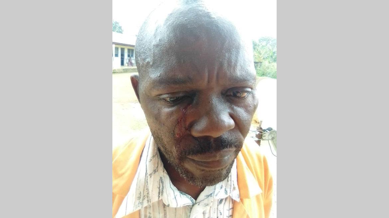Insécurité : Un agent des TP agressé sur le chantier Ndendé-Doussala