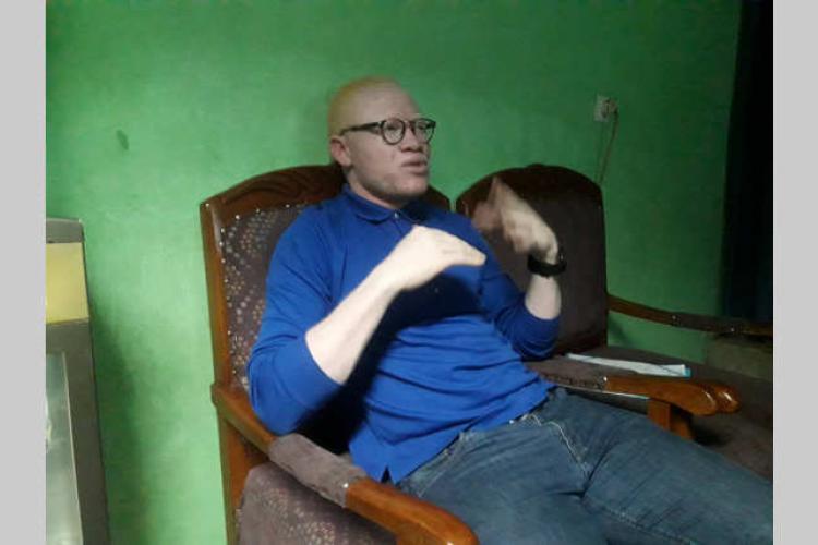 Santé : La difficile intégration socialedes albinos